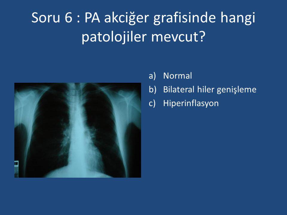 Soru 6 : PA akciğer grafisinde hangi patolojiler mevcut? a)Normal b)Bilateral hiler genişleme c)Hiperinflasyon