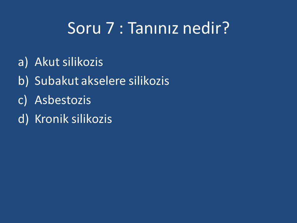 Soru 7 : Tanınız nedir? a)Akut silikozis b)Subakut akselere silikozis c)Asbestozis d)Kronik silikozis