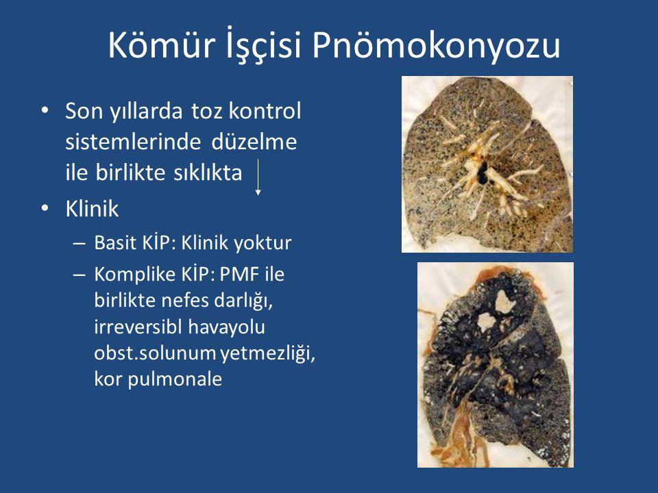 Kömür İşçisi Pnömokonyozu Son yıllarda toz kontrol sistemlerinde düzelme ile birlikte sıklıkta Klinik – Basit KİP: Klinik yoktur – Komplike KİP: PMF i