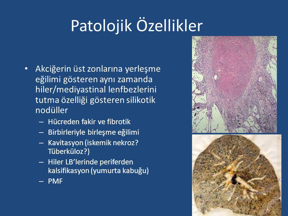 Patolojik Özellikler Akciğerin üst zonlarına yerleşme eğilimi gösteren aynı zamanda hiler/mediyastinal lenfbezlerini tutma özelliği gösteren silikotik