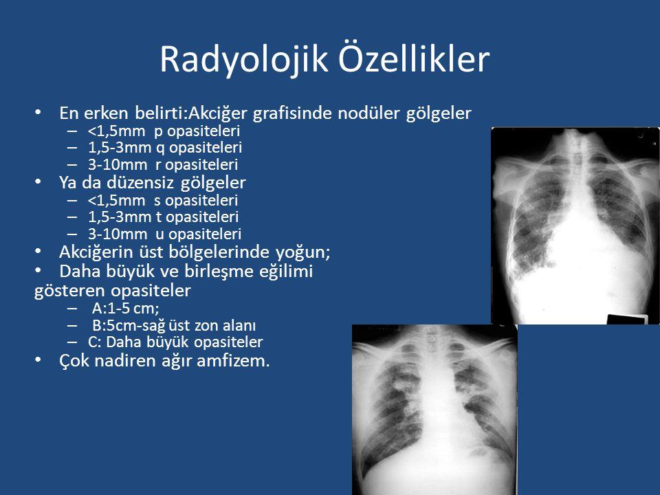 Radyolojik Özellikler En erken belirti:Akciğer grafisinde nodüler gölgeler – <1,5mm p opasiteleri – 1,5-3mm q opasiteleri – 3-10mm r opasiteleri Ya da