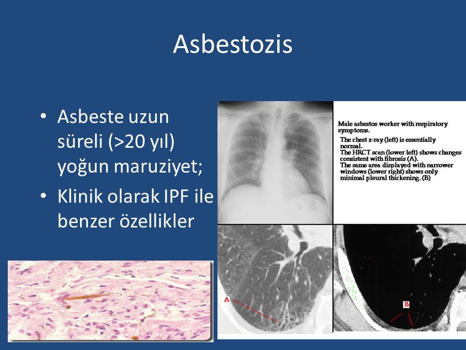 Asbestozis Asbeste uzun süreli (>20 yıl) yoğun maruziyet; Klinik olarak IPF ile benzer özellikler