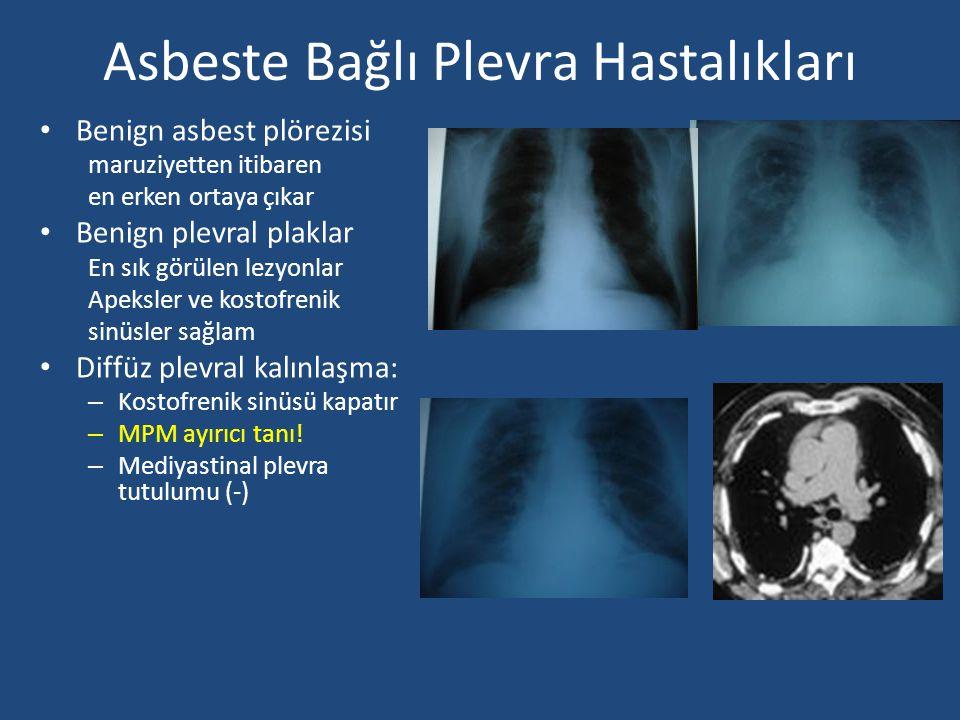 Asbeste Bağlı Plevra Hastalıkları Benign asbest plörezisi maruziyetten itibaren en erken ortaya çıkar Benign plevral plaklar En sık görülen lezyonlar