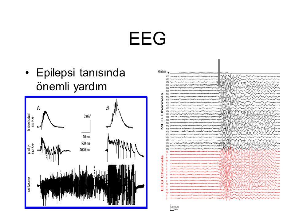 EEG Epilepsi tanısında önemli yardım