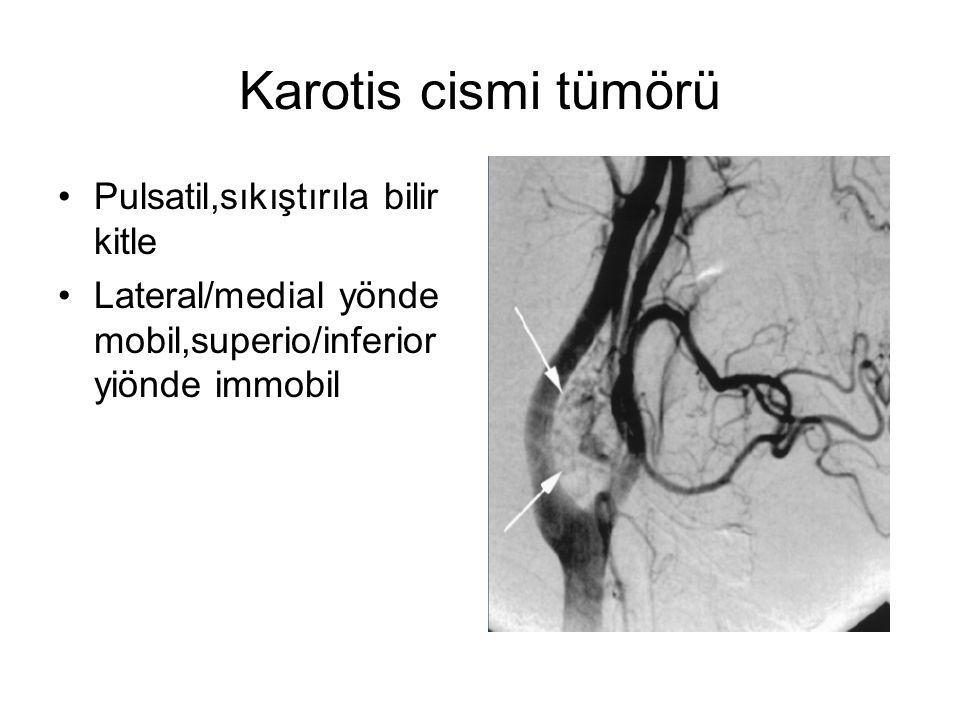 Karotis cismi tümörü Pulsatil,sıkıştırıla bilir kitle Lateral/medial yönde mobil,superio/inferior yiönde immobil
