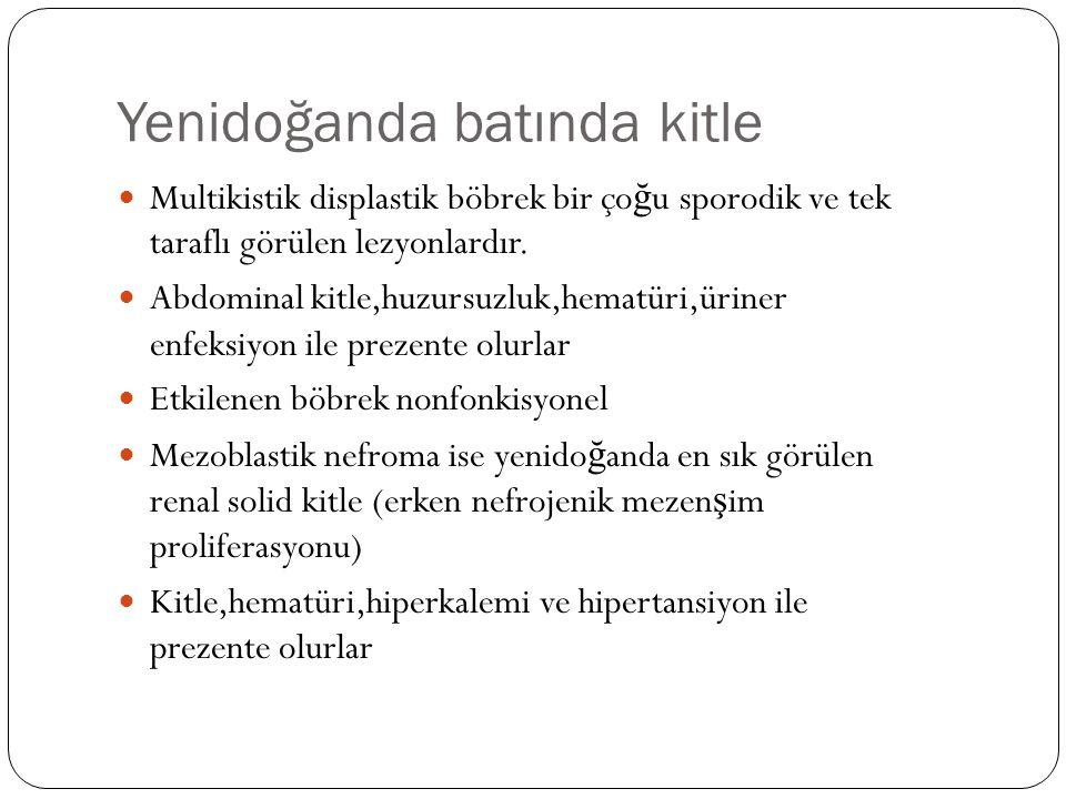 Yenidoğanda batında kitle Multikistik displastik böbrek bir ço ğ u sporodik ve tek taraflı görülen lezyonlardır. Abdominal kitle,huzursuzluk,hematüri,