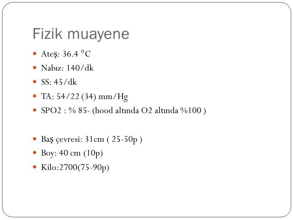 Fizik muayene Ate ş : 36.4 °C Nabız: 140/dk SS: 45/dk TA: 54/22 (34) mm/Hg SPO2 : % 85- (hood altında O2 altında %100 ) Ba ş çevresi: 31cm ( 25-50p )