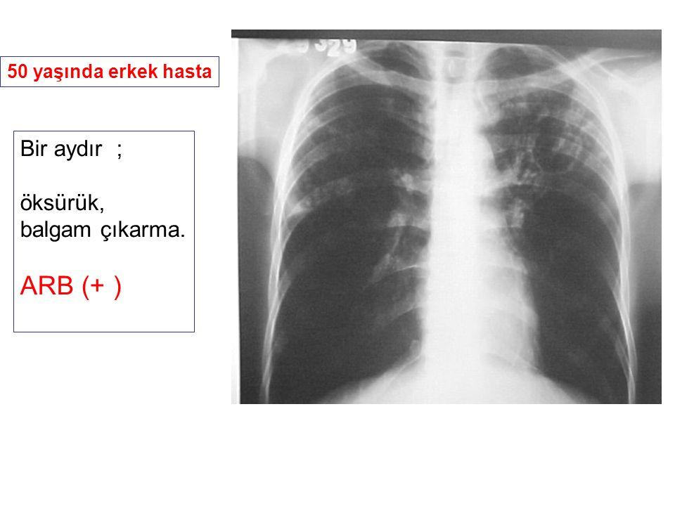 Balgam yayması pozitif yeni akciğer tüberkülozu tanısı ile üç ay önce INH+RIF+ETB+PZA ile tedaviye başlanmış.