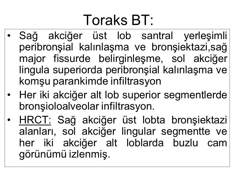 Toraks BT: Sağ akciğer üst lob santral yerleşimli peribronşial kalınlaşma ve bronşiektazi,sağ major fissurde belirginleşme, sol akciğer lingula superi