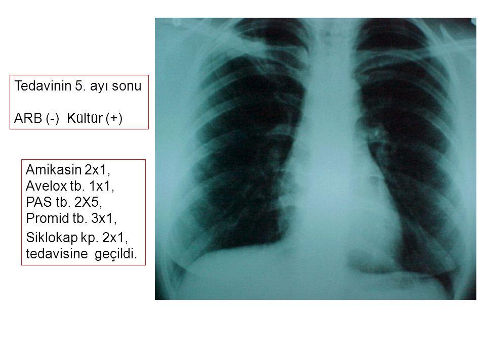 Tedavinin 5. ayı sonu ARB (-) Kültür (+) Amikasin 2x1, Avelox tb. 1x1, PAS tb. 2X5, Promid tb. 3x1, Siklokap kp. 2x1, tedavisine geçildi.