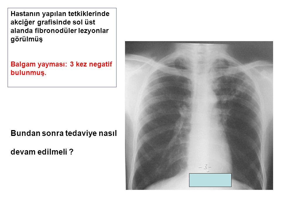 Hastanın yapılan tetkiklerinde akciğer grafisinde sol üst alanda fibronodüler lezyonlar görülmüş Balgam yayması: 3 kez negatif bulunmuş. Bundan sonra