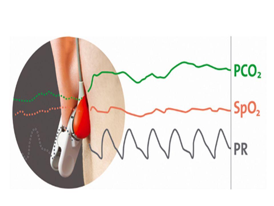 NEDEN KIRMIZI LED? Kalbin her sistolik hareketiyle kapiller ve komşu dokuların hacmi artar ve parmak ucundan geçen ışık miktarı azalır. Kana kırmızılı