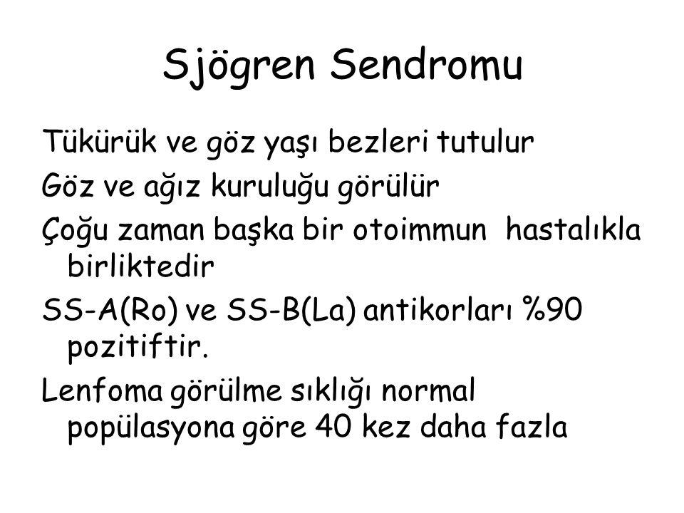Sjögren Sendromu Tükürük ve göz yaşı bezleri tutulur Göz ve ağız kuruluğu görülür Çoğu zaman başka bir otoimmun hastalıkla birliktedir SS-A(Ro) ve SS-