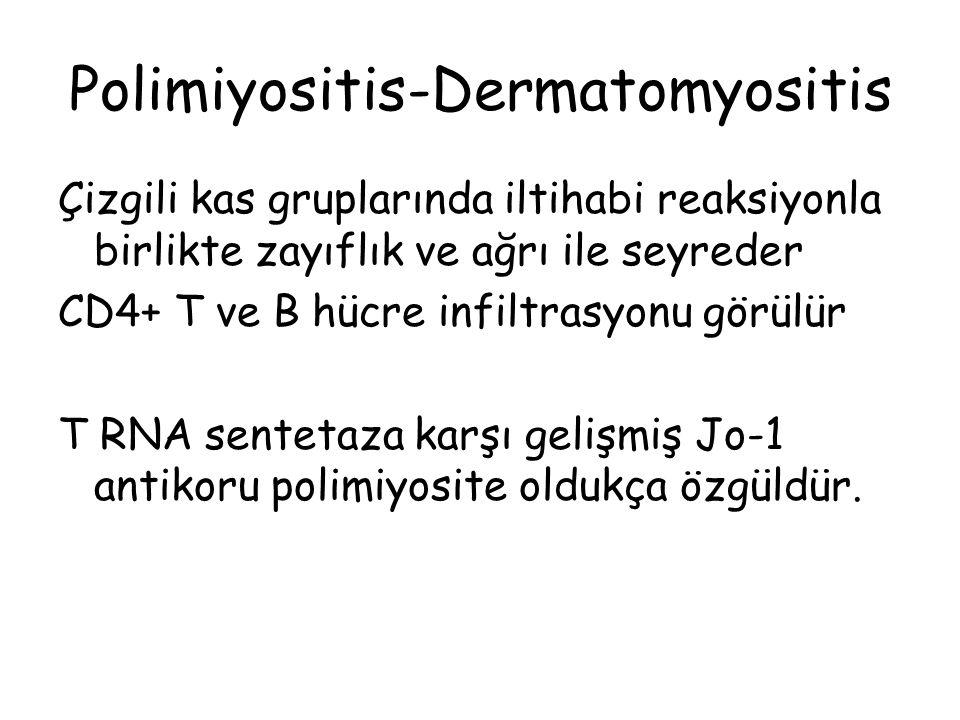 Polimiyositis-Dermatomyositis Çizgili kas gruplarında iltihabi reaksiyonla birlikte zayıflık ve ağrı ile seyreder CD4+ T ve B hücre infiltrasyonu görü