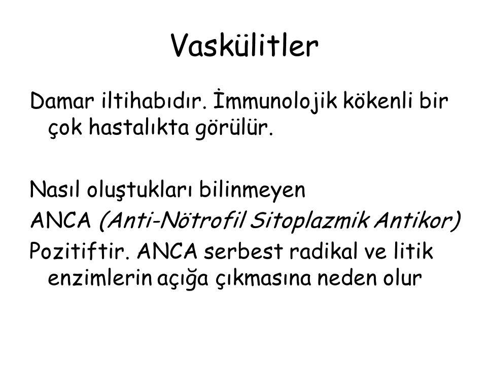 Vaskülitler Damar iltihabıdır. İmmunolojik kökenli bir çok hastalıkta görülür. Nasıl oluştukları bilinmeyen ANCA (Anti-Nötrofil Sitoplazmik Antikor) P