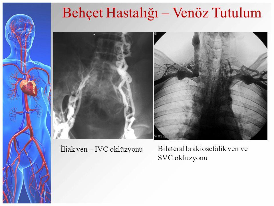 Behçet Hastalığı – Venöz Tutulum İliak ven – IVC oklüzyonu Bilateral brakiosefalik ven ve SVC oklüzyonu