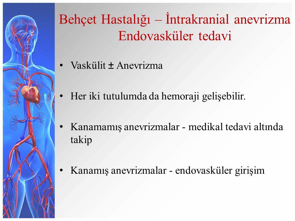 Behçet Hastalığı – İntrakranial anevrizma Endovasküler tedavi Vaskülit ± Anevrizma Her iki tutulumda da hemoraji gelişebilir.