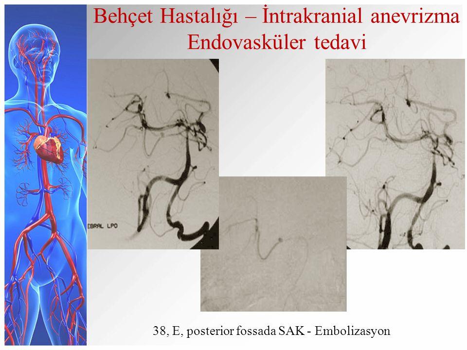 38, E, posterior fossada SAK - Embolizasyon Behçet Hastalığı – İntrakranial anevrizma Endovasküler tedavi