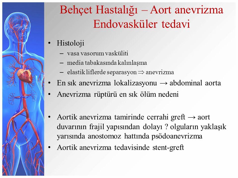 Behçet Hastalığı – Aort anevrizma Endovasküler tedavi Histoloji – vasa vasorum vasküliti – media tabakasında kalınlaşma – elastik liflerde separasyon  anevrizma En sık anevrizma lokalizasyonu → abdominal aorta Anevrizma rüptürü en sık ölüm nedeni Aortik anevrizma tamirinde cerrahi greft → aort duvarının frajil yapısından dolayı .