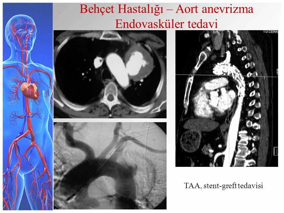 Behçet Hastalığı – Aort anevrizma Endovasküler tedavi TAA, stent-greft tedavisi