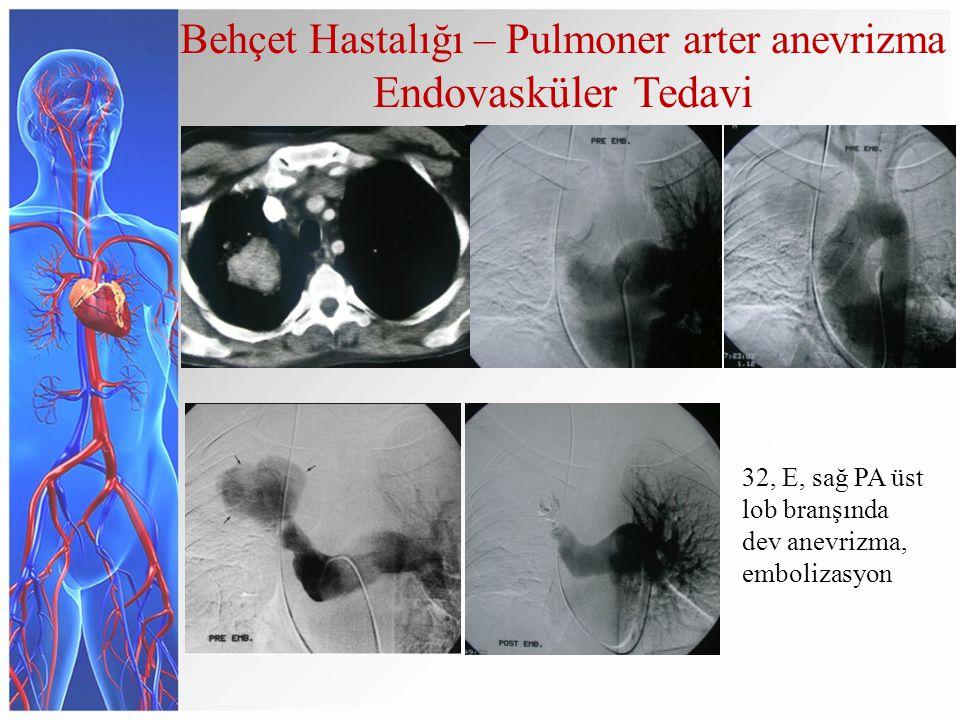 Behçet Hastalığı – Pulmoner arter anevrizma Endovasküler Tedavi 32, E, sağ PA üst lob branşında dev anevrizma, embolizasyon