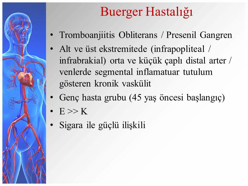 Buerger Hastalığı Tromboanjiitis Obliterans / Presenil Gangren Alt ve üst ekstremitede (infrapopliteal / infrabrakial) orta ve küçük çaplı distal arte