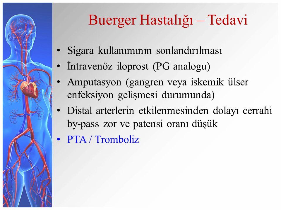 Buerger Hastalığı – Tedavi Sigara kullanımının sonlandırılması İntravenöz iloprost (PG analogu) Amputasyon (gangren veya iskemik ülser enfeksiyon gelişmesi durumunda) Distal arterlerin etkilenmesinden dolayı cerrahi by-pass zor ve patensi oranı düşük PTA / Tromboliz