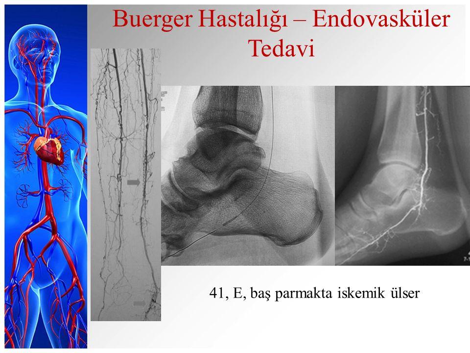 Buerger Hastalığı – Endovasküler Tedavi 41, E, baş parmakta iskemik ülser
