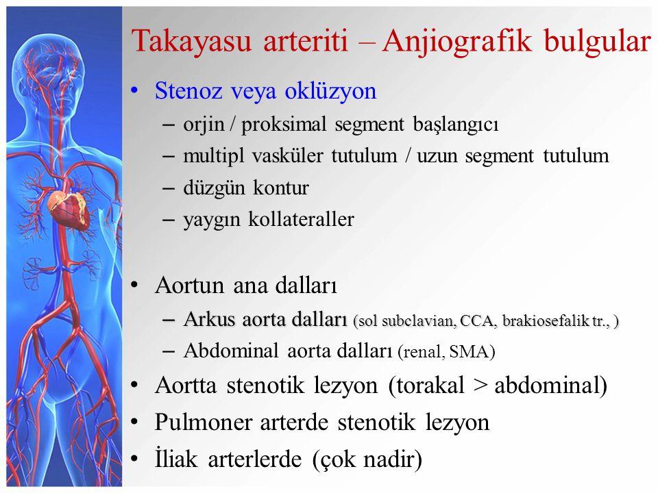 Takayasu arteriti – Anjiografik bulgular Stenoz veya oklüzyon – orjin / proksimal segment başlangıcı – multipl vasküler tutulum / uzun segment tutulum – düzgün kontur – yaygın kollateraller Aortun ana dalları – Arkus aorta dalları (sol subclavian, CCA, brakiosefalik tr., ) – Abdominal aorta dalları (renal, SMA) Aortta stenotik lezyon (torakal > abdominal) Pulmoner arterde stenotik lezyon İliak arterlerde (çok nadir)