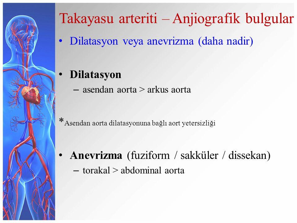 Takayasu arteriti – Anjiografik bulgular Dilatasyon veya anevrizma (daha nadir) Dilatasyon – asendan aorta > arkus aorta * Asendan aorta dilatasyonuna