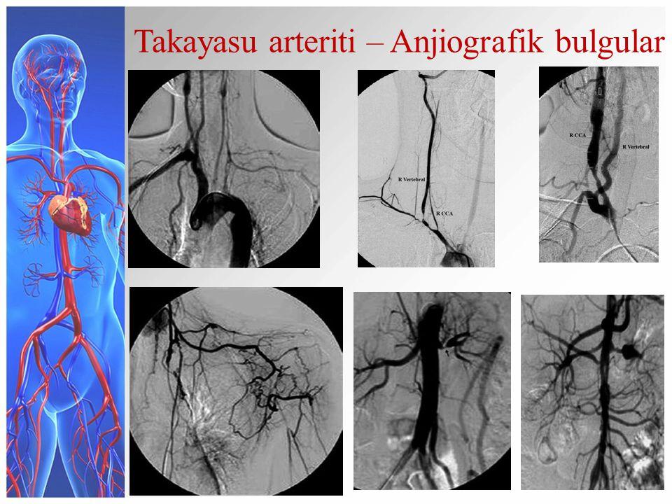 Takayasu arteriti – Anjiografik bulgular
