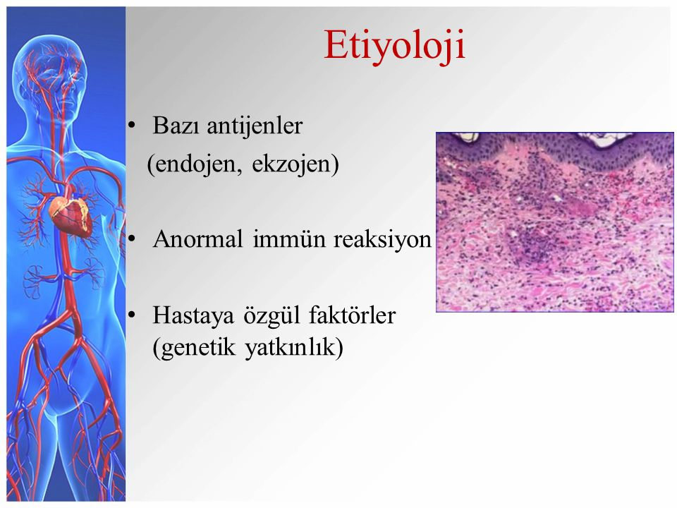 Etiyoloji Bazı antijenler (endojen, ekzojen) Anormal immün reaksiyon Hastaya özgül faktörler (genetik yatkınlık)