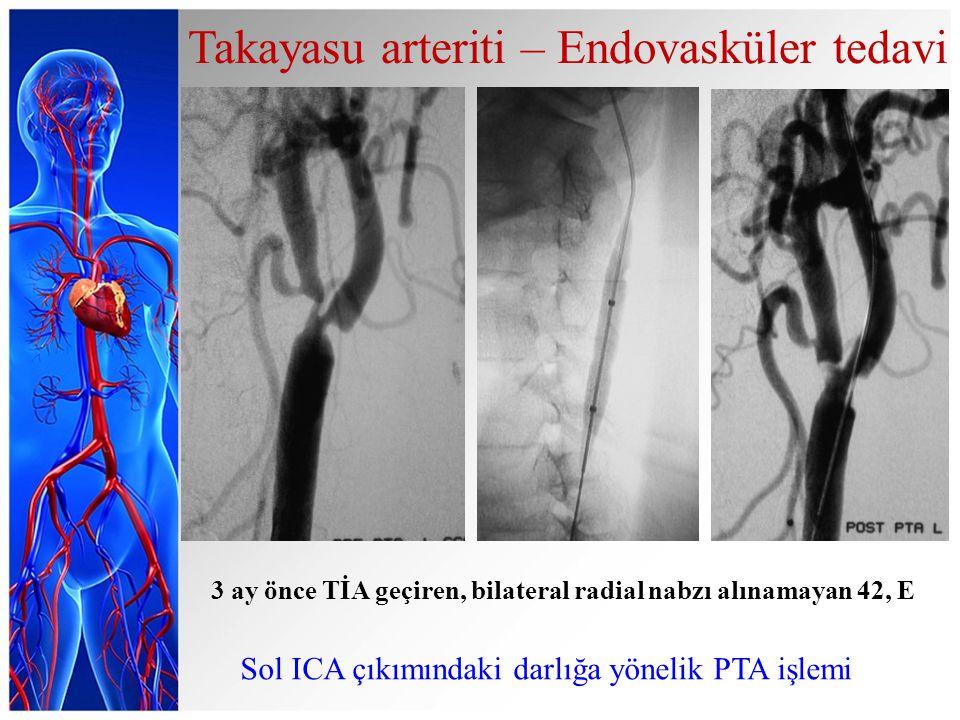 3 ay önce TİA geçiren, bilateral radial nabzı alınamayan 42, E Sol ICA çıkımındaki darlığa yönelik PTA işlemi Takayasu arteriti – Endovasküler tedavi