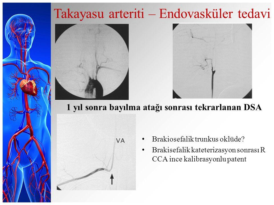 Brakiosefalik trunkus oklüde.