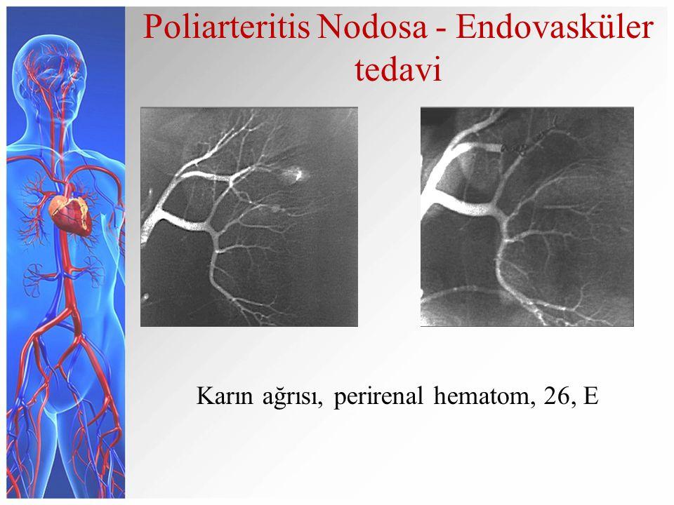 Poliarteritis Nodosa - Endovasküler tedavi Karın ağrısı, perirenal hematom, 26, E