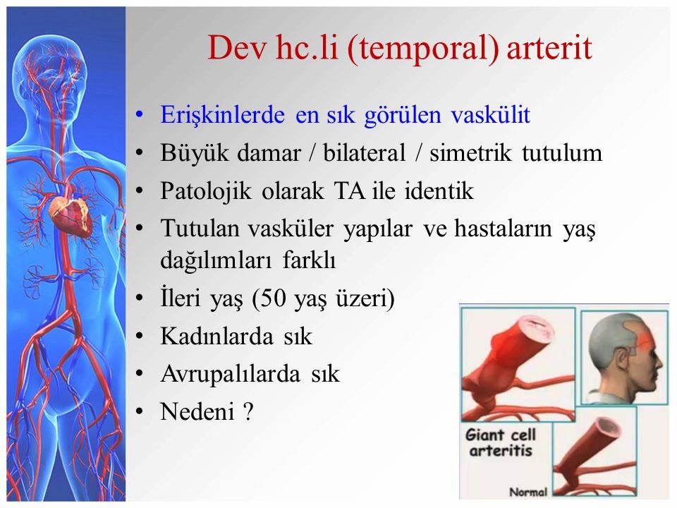Dev hc.li (temporal) arterit Erişkinlerde en sık görülen vaskülit Büyük damar / bilateral / simetrik tutulum Patolojik olarak TA ile identik Tutulan v