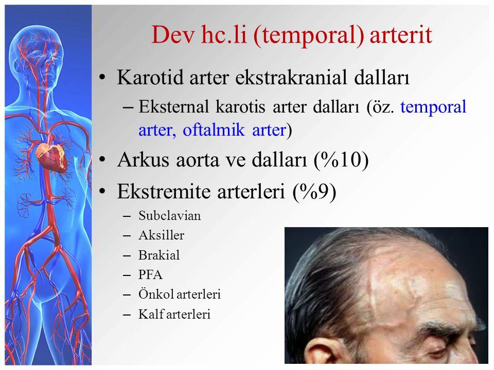 Dev hc.li (temporal) arterit Karotid arter ekstrakranial dalları – Eksternal karotis arter dalları (öz. temporal arter, oftalmik arter) Arkus aorta ve
