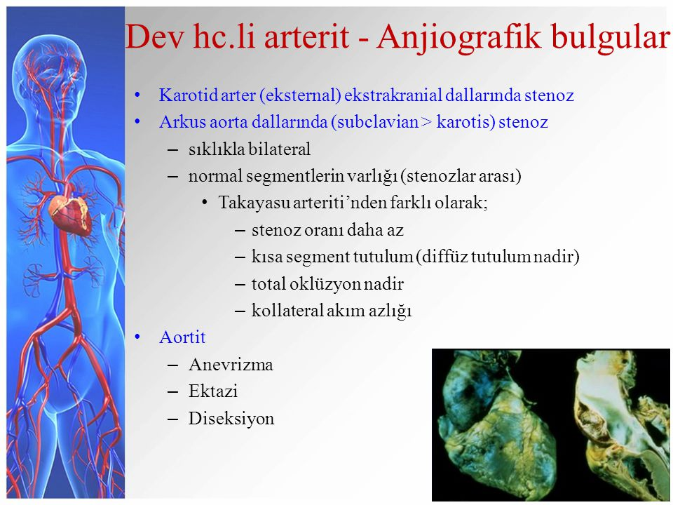 Dev hc.li arterit - Anjiografik bulgular Karotid arter (eksternal) ekstrakranial dallarında stenoz Arkus aorta dallarında (subclavian > karotis) stenoz – sıklıkla bilateral – normal segmentlerin varlığı (stenozlar arası) Takayasu arteriti'nden farklı olarak; – stenoz oranı daha az – kısa segment tutulum (diffüz tutulum nadir) – total oklüzyon nadir – kollateral akım azlığı Aortit – Anevrizma – Ektazi – Diseksiyon