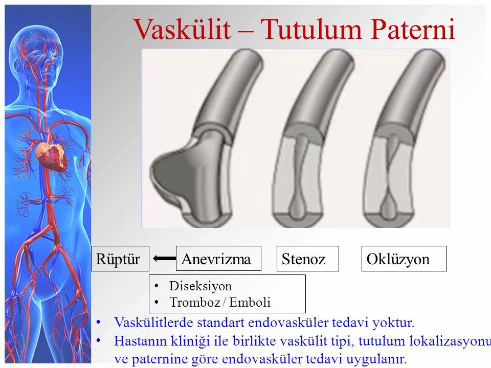 Vaskülit – Tutulum Paterni AnevrizmaStenozOklüzyonRüptür Diseksiyon Tromboz / Emboli Vaskülitlerde standart endovasküler tedavi yoktur.