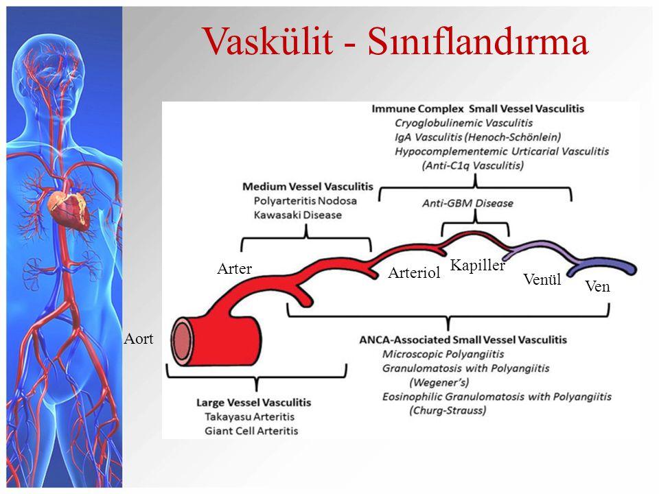 Büyük damarları tutan vaskülitler Takayasu arteriti Dev hücreli (temporal) arterit Orta çaplı damarların tutulduğu vaskülitler Poliarteritis nodosa (PAN) Kawasaki hastalığı Küçük çaplı damarların tutulduğu vaskülitler Tromboanjitis obliterans (Buerger) ANCA–ilişkili vaskülit Mikroskopik polianjiit Granülomatöz polianjiit (Wegener) Eozinofilik granülomatöz polianjiit (Churg-Strauss) Antiglomerular bazal membran hastalığı (anti-GBM) Kryoglobülinemik vaskülit IgA vasküliti (Henoch-Schonlein) Değişken çapta damarların tutulumu ile seyreden vaskülitler Behçet hastalığı Cogan sendromu Vaskülit - Sınıflandırma Tek organ tutulumu ile giden vaskülitler Kutanöz lökositoklastik anjiit Kutanöz arterit Primer santral sinir sistemi vasküliti İzole aortit Sistemik hastalık ile ilişkili vaskülitler Lupus vasküliti Romatoid vasküliti Sarkoid vaskülit Diğer Farklı etiyolojik nedenlerle ilişkili vaskülitler Hepatit C virüs–ilişkili kryoglobülinemik vaskülit Hepatit B virüs–ilişkili vaskülit Sifiliz ilişkili aortit İlaç ilişkili immün kompleks vasküliti Malignitelerle ilişkili vaskülit 2012 revised International Chapel Hill Consensus Conference Nomenclature of Vasculitides; Arthritis Rheum.