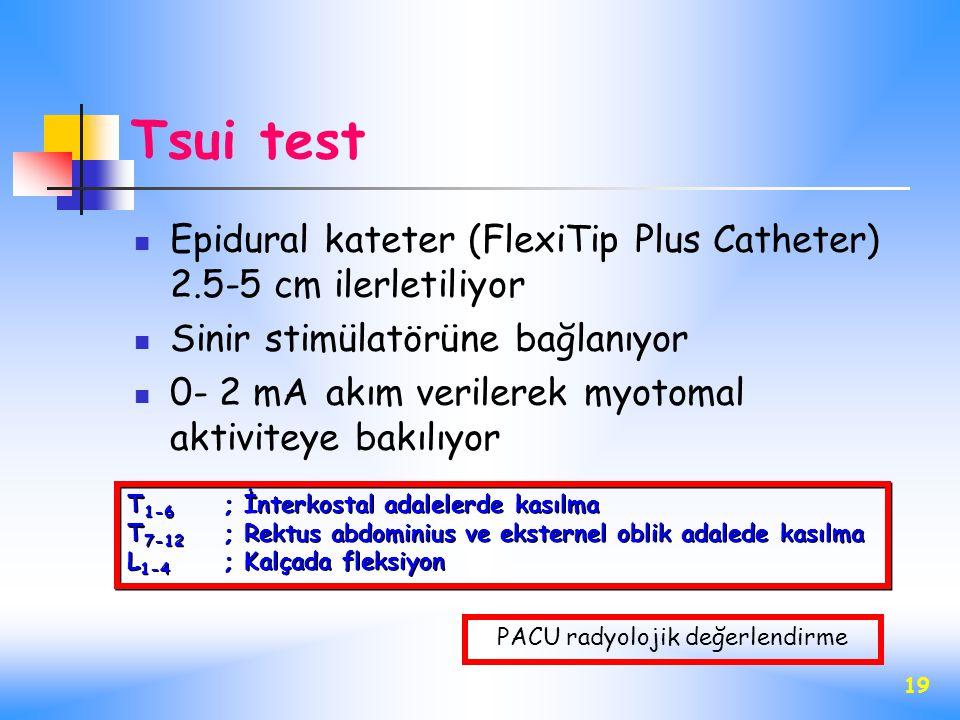 19 Tsui test Epidural kateter (FlexiTip Plus Catheter) 2.5-5 cm ilerletiliyor Sinir stimülatörüne bağlanıyor 0- 2 mA akım verilerek myotomal aktivitey