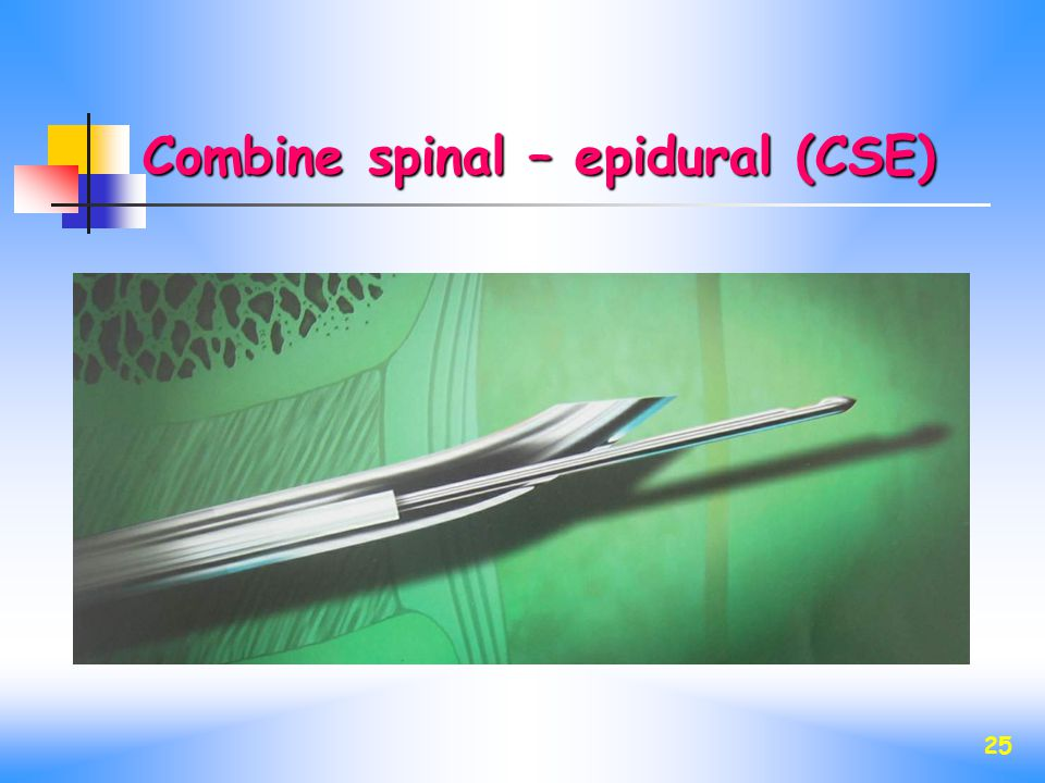 25 Combine spinal – epidural (CSE)