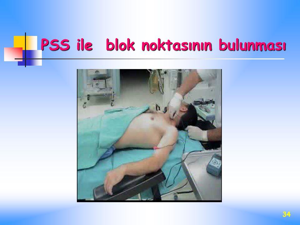 34 PSS ile blok noktasının bulunması