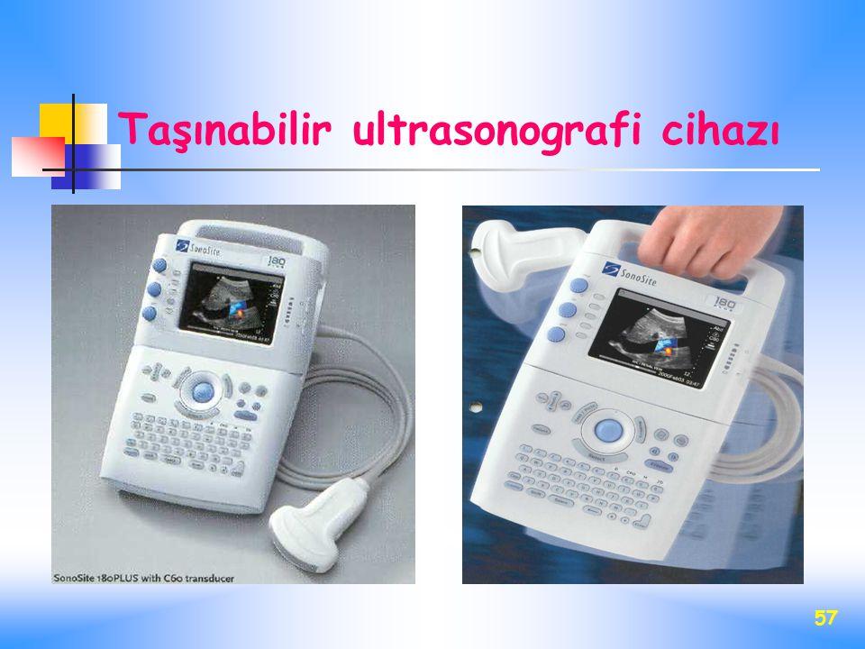 57 Taşınabilir ultrasonografi cihazı