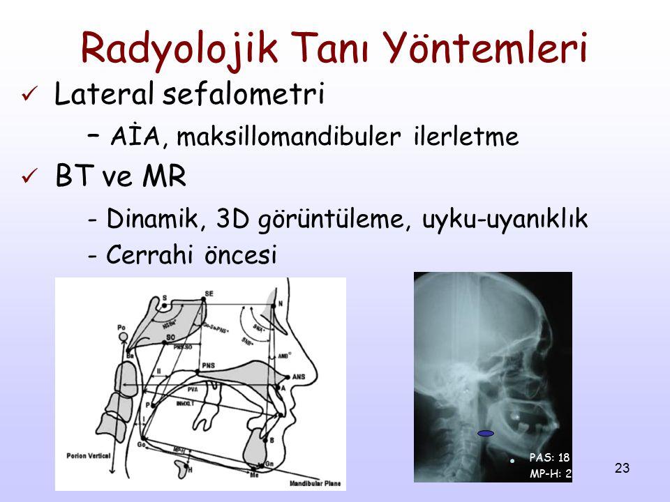 23 Radyolojik Tanı Yöntemleri Lateral sefalometri – AİA, maksillomandibuler ilerletme BT ve MR - Dinamik, 3D görüntüleme, uyku-uyanıklık - Cerrahi önc