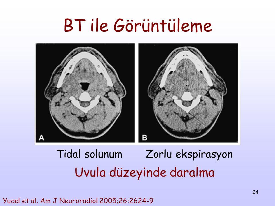24 BT ile Görüntüleme Tidal solunum Zorlu ekspirasyon Uvula düzeyinde daralma Yucel et al. Am J Neuroradiol 2005;26:2624-9