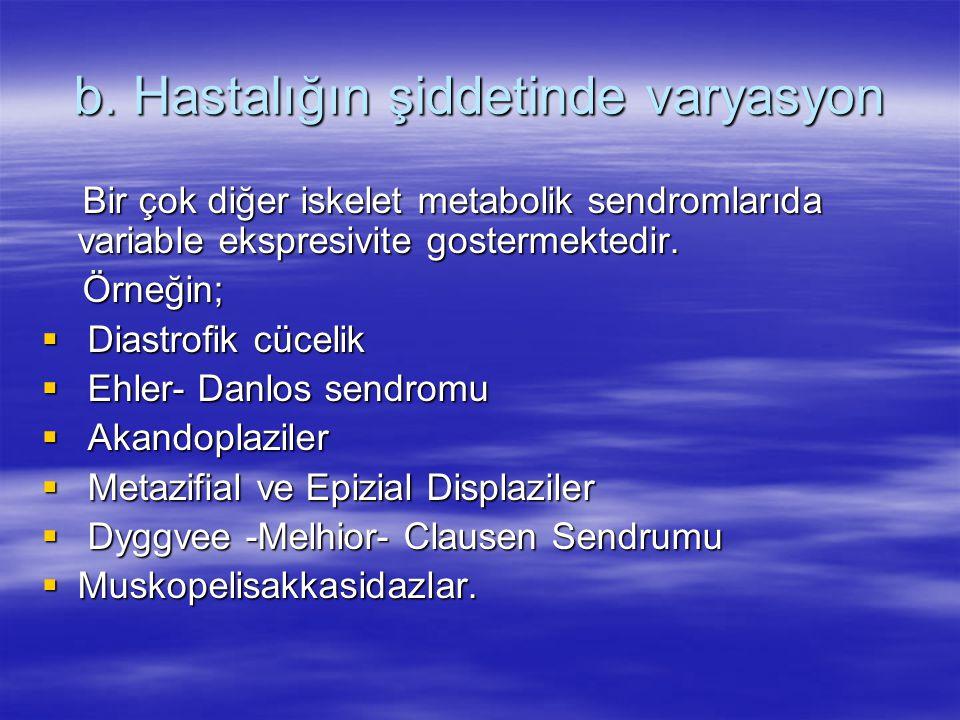 b. Hastalığın şiddetinde varyasyon Bir çok diğer iskelet metabolik sendromlarıda variable ekspresivite gostermektedir. Bir çok diğer iskelet metabolik