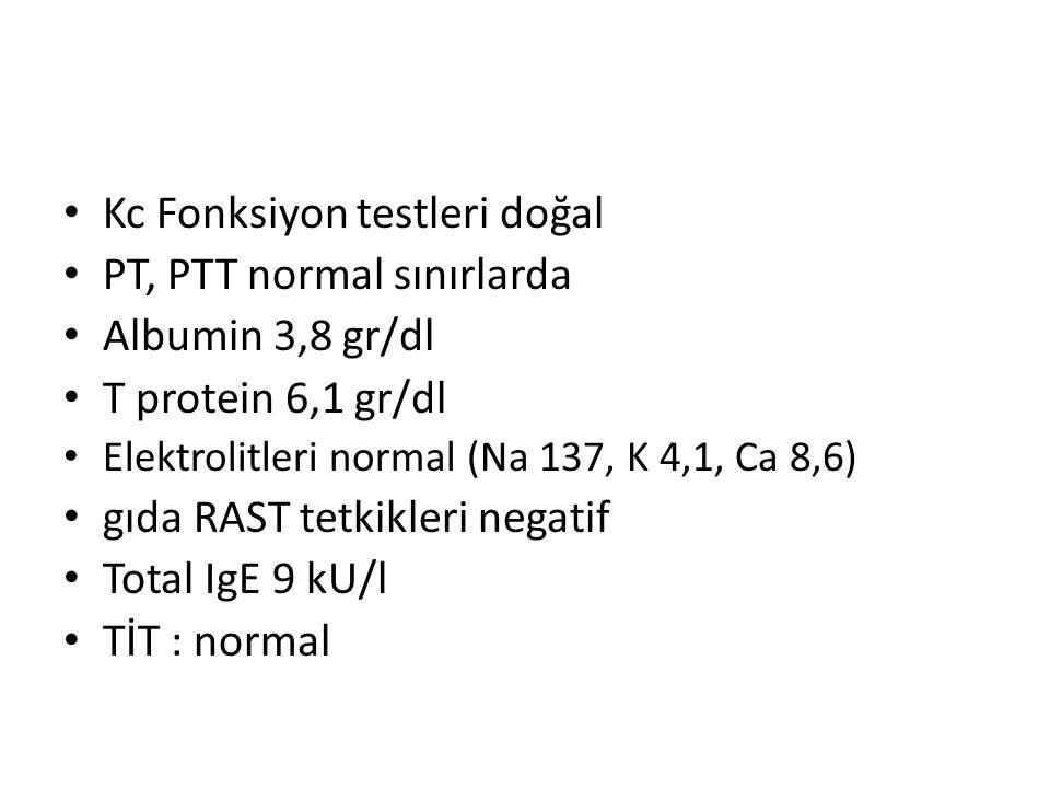 Kc Fonksiyon testleri doğal PT, PTT normal sınırlarda Albumin 3,8 gr/dl T protein 6,1 gr/dl Elektrolitleri normal (Na 137, K 4,1, Ca 8,6) gıda RAST te