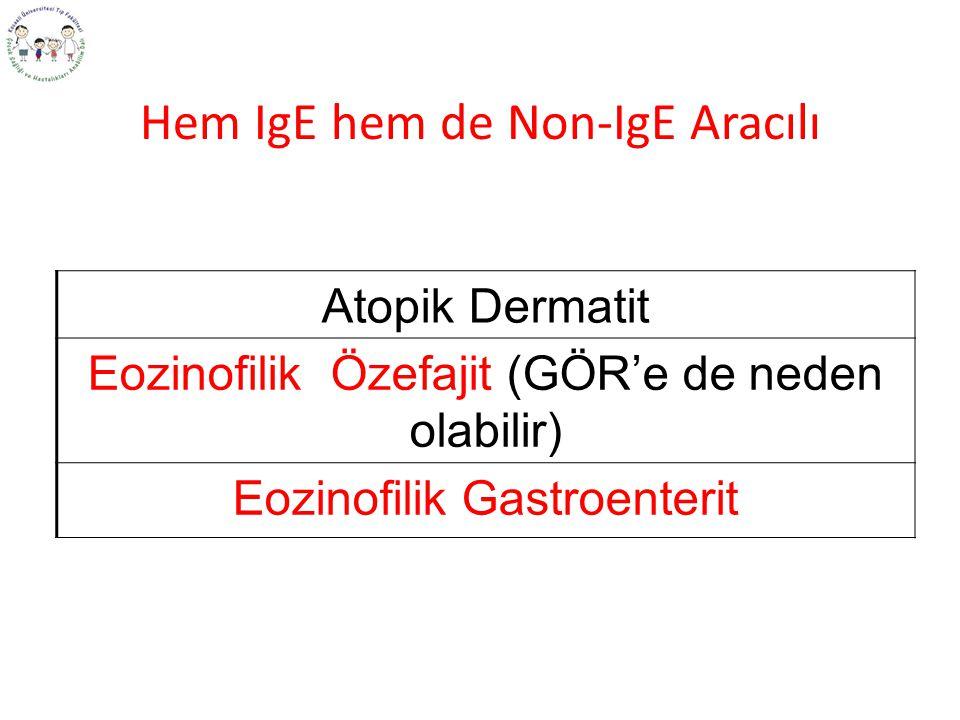 Hem IgE hem de Non-IgE Aracılı Atopik Dermatit Eozinofilik Özefajit (GÖR'e de neden olabilir) Eozinofilik Gastroenterit