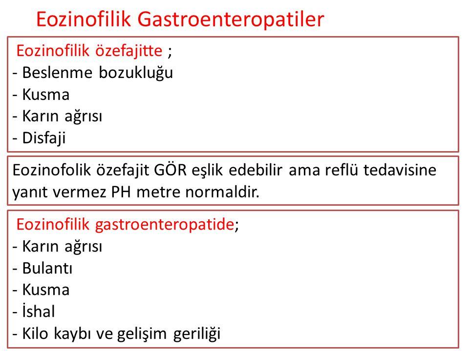 Eozinofilik özefajitte ; - Beslenme bozukluğu - Kusma - Karın ağrısı - Disfaji Eozinofolik özefajit GÖR eşlik edebilir ama reflü tedavisine yanıt verm